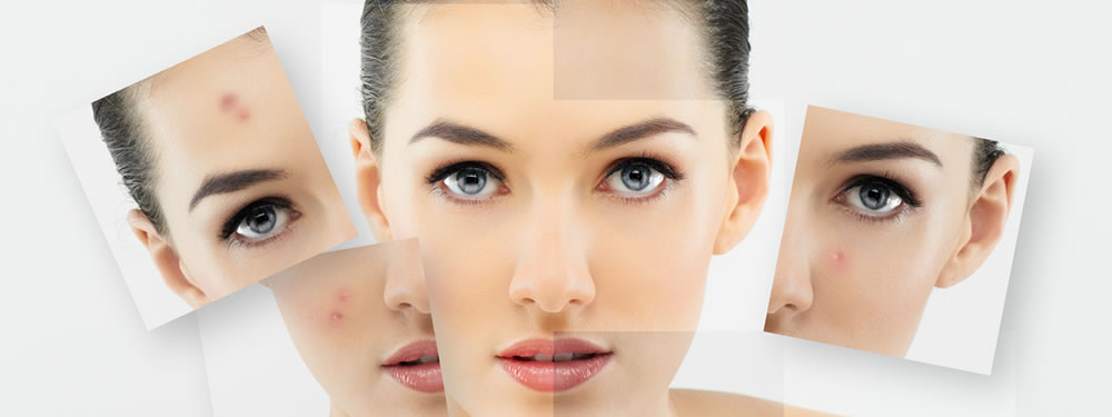 Cosmeceutical Treatment Therapy